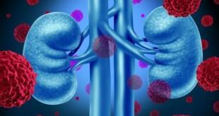 cancer-drug-nivolumab-opdivo