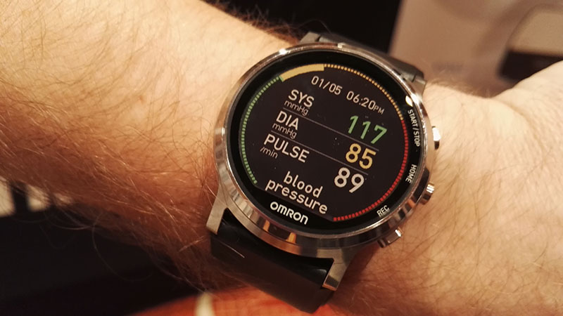 Project Zero Monitor 2.0 (Omron): Wristwatch That Measures Blood Pressure