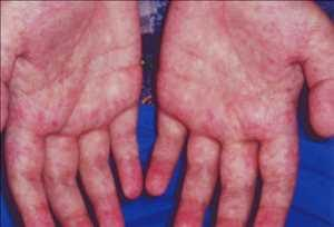 Graft Versus Host Disease Gvhd Treatment Market