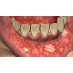 Oral Mucositis Therapeutics Market