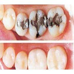 Composite Filling in Dental Restoration Market