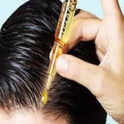 Topical Hair Loss Treatments Market
